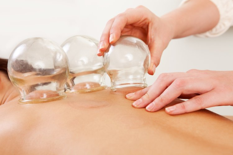 A deep insight about Cupping